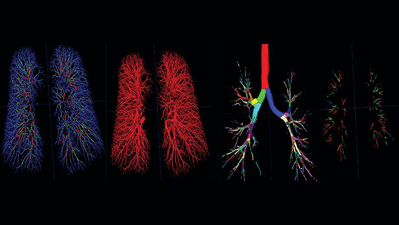 thoracic high-resolution computed tomography